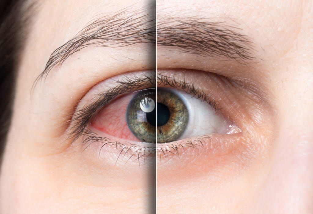 dry eyes hyaluronic acid